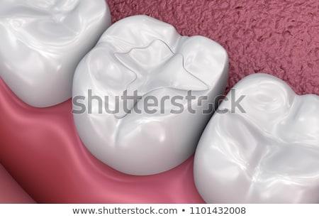 Macro image of filled teeth Stock photo © backyardproductions
