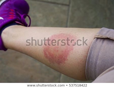 Deer Tick On Skin Stock photo © Lightsource