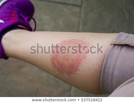 bijten · hoofd · menselijke · huid · Rood · medische - stockfoto © lightsource