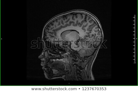 Mri hersenen scannen tieners hoofd mannelijke Stockfoto © soupstock