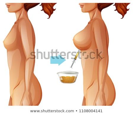 груди жира передача метод иллюстрация женщину Сток-фото © bluering