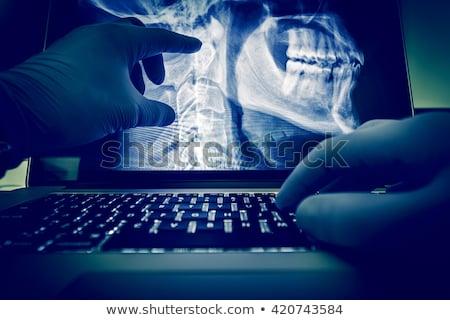 X-ray examination and notebook Stock photo © cherezoff