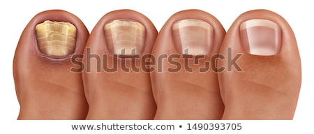 Fungal Nail Infection Recovery Stock photo © Lightsource