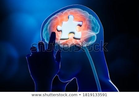 cérebro · diagnóstico · médico · impresso · turva · texto - foto stock © tashatuvango