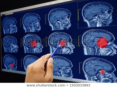 Magnetic Resonance Imaging concept. Stock photo © 72soul