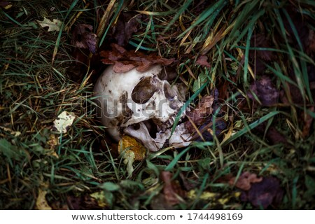Human Skeleton Disease Stock photo © Lightsource