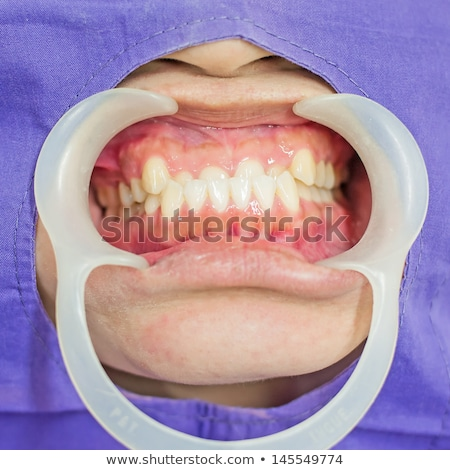 Close up of a mouth open with the dentist behind Stock photo © wavebreak_media