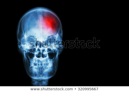 concept of the disease is a stroke black Stock photo © Olena