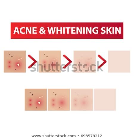 Ilustración piel acné crema saludable Foto stock © Neokryuger