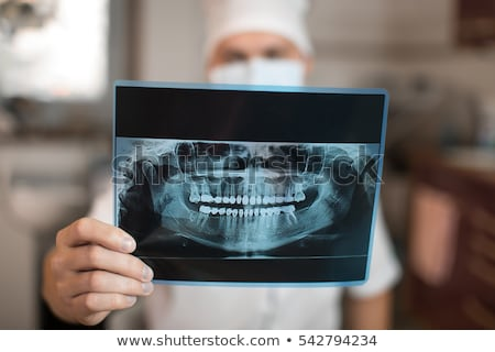 dental x-ray picture of jaw Stock photo © Mikko