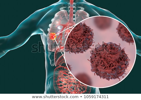 Human man with tumor in lungs Stock photo © bluering