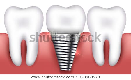 dente · coroa · isolado · branco · corpo · cuidar - foto stock © tefi