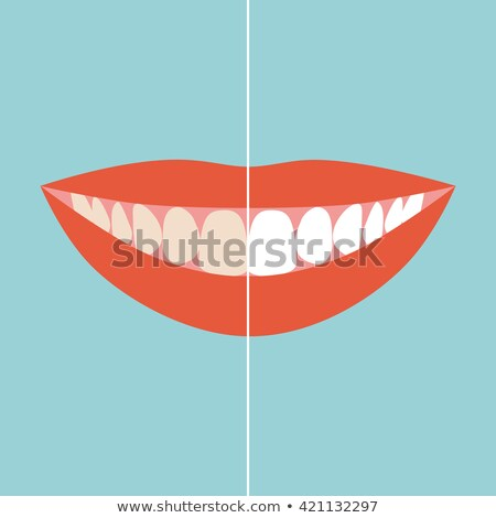 Before and after view of teeth whitening Stock photo © adrian_n