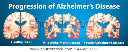 Progression of Alzheimer's disease on blue background Stock photo © bluering