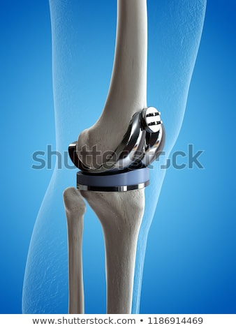 Foto d'archivio: Prosthesis Of The Knee