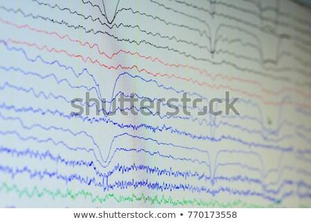 Brain Recording Stock photo © idesign