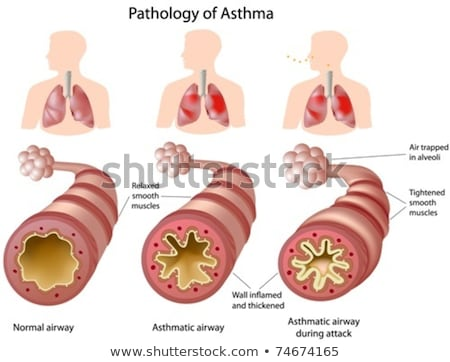 human anatomy of lung condition stock photo © bluering