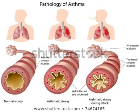 Anatomia humana pulmão condição ilustração projeto saúde Foto stock © bluering