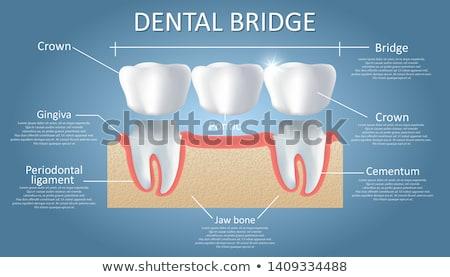 Diş köprü makro tıp ayna çelik Stok fotoğraf © stockfrank