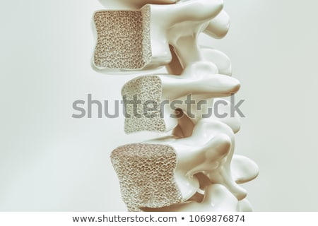 Osteoporosis Medical Illustration Stock photo © Lightsource
