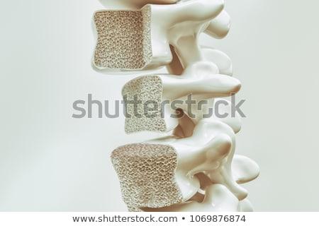 fraturar · cirúrgico · intervenção · ortopedia · médico · ciência - foto stock © lightsource