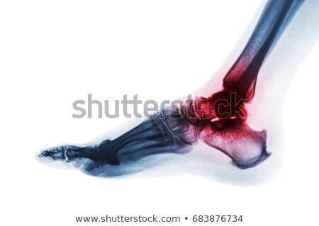 Stock photo: Ankle Xray