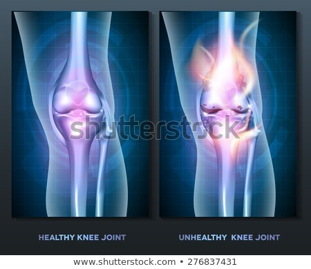 burning leg knee joint stock photo © tefi