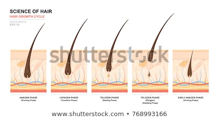 Hair Loss Diagram Stock photo © Lightsource