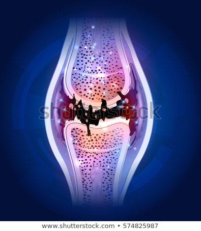 damaged synovial joint colorful bright design on an abstract blu stock photo © tefi