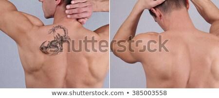 Laser tatouage enlèvement Retour épaule blanche Photo stock © AndreyPopov
