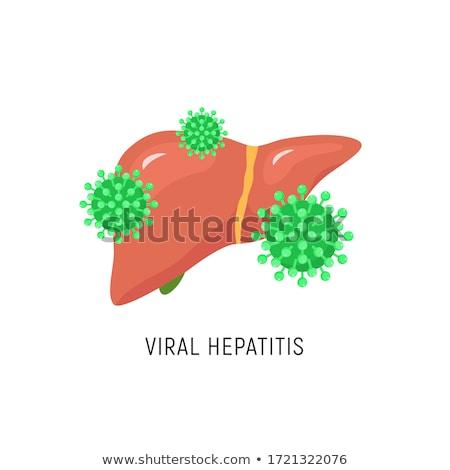 Diagnosis - HCV. Medical Concept. Stock photo © tashatuvango