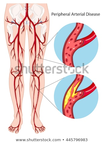 Stock photo: Artery Disease Diagram
