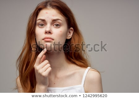 teen squeezing acne spot Stock photo © godfer