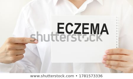 Bőrgyógyászat írott vágólap kórház gyógyszer üveg Stock fotó © Zerbor