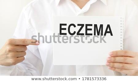 Dermatology written on a clipboard Stock photo © Zerbor