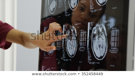 woman doctor with x-rays of brain Stock photo © Nobilior
