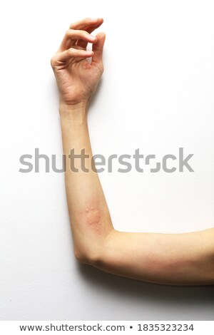 Stock photo: A Young Girl Having Urticaria