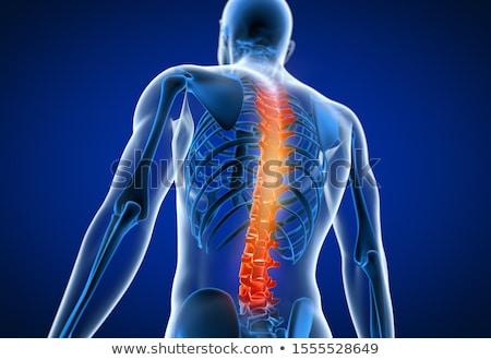 Stok fotoğraf: Illustration Of Painful Back