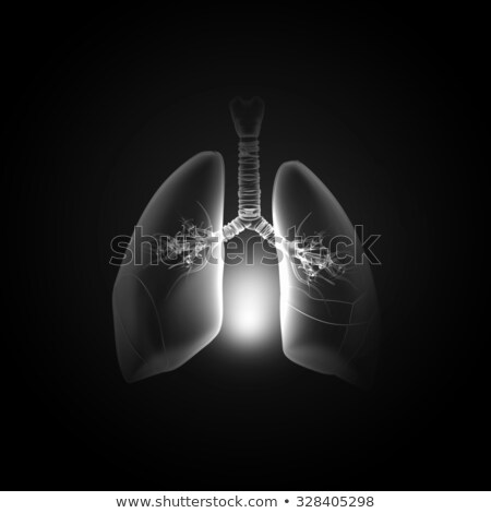 Pulmão raio x resultar isolado branco Foto stock © Elisanth