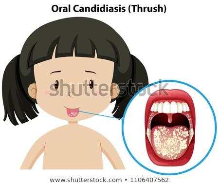Oral Candidiasis thursh on girl Stock photo © bluering