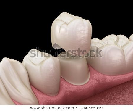 ストックフォト: Dental Crown And Tooth