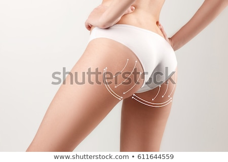 Female body correction surgery marks Stock photo © Tefi