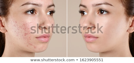Acne Skin Concept Stock photo © Lightsource