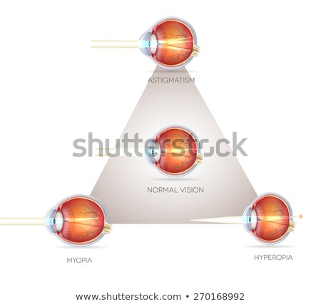 eye vision triangle vision disorders normal eye astigmatism stock photo © tefi