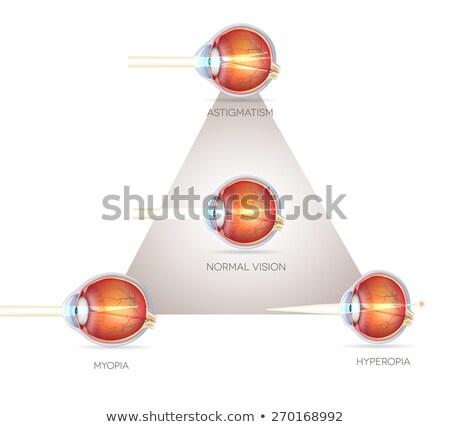 Eye vision triangle, vision disorders. Normal eye, Astigmatism,  Stock photo © Tefi