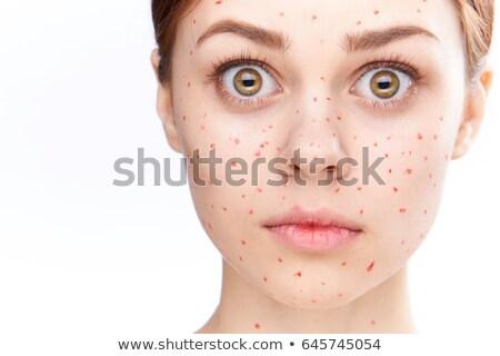 Pretty girl with the Chickenpox  Stock photo © olinkau