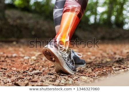 Ankle brace Stock photo © razvanphotos