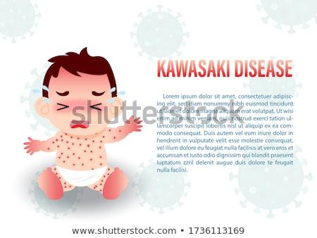 Kids Boys Skin Complexion Illustration Stock photo © lenm