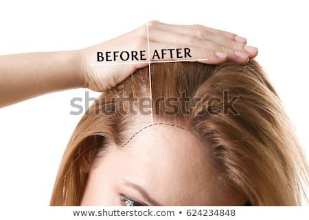 Alopecia Hair Loss Or Baldness Concept Stock photo © ivelin