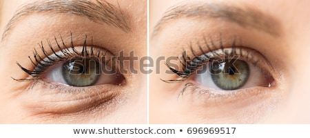 Eye Bags Before And After Cosmetic Treatment Stock photo © AndreyPopov